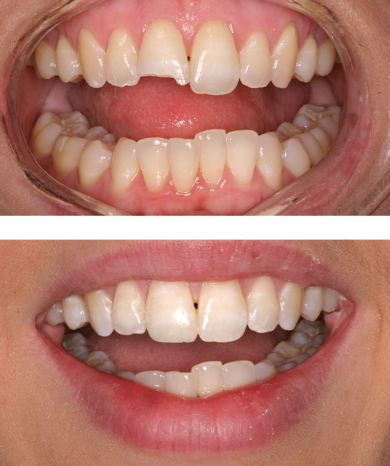 Closeup photos of Wendy smiling showing direct resin bonding results