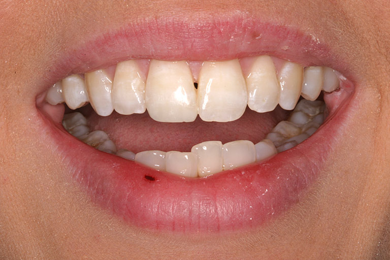 Closeup photo of Wendy showing teeth after direct resin bonding results