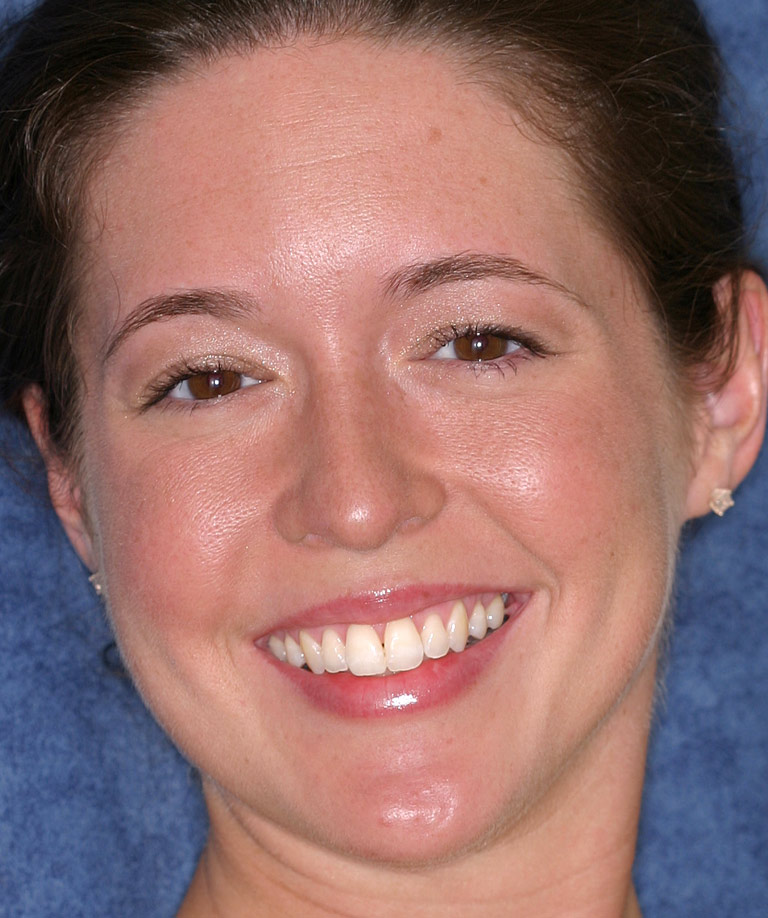 Headshot photo of Wendy smiling showing direct resin bonding results from Dr. Brooksher