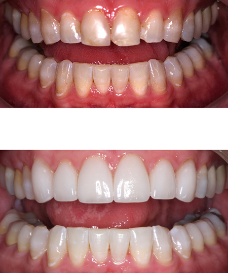 Before-and-after porcelain veneers photos of a patient at Dentistry by Brooksher in Baton Rouge, LA.