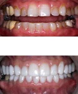 Before-and-after smile makeover patient photos from Dentistry by Brooksher in Baton Rouge, LA.