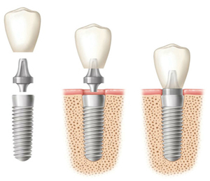 Diagram of the phases of a dental implant for a comparison to a partial denture.