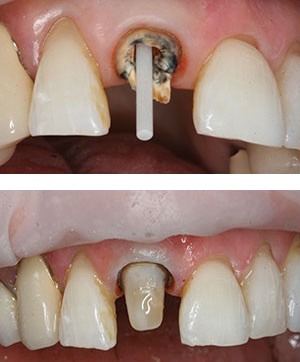 Post and crown (top photo) and dental bonding built up around the post (lower photo)