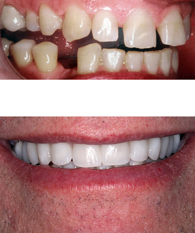 Before-and-after smile makeover photos. Top photo shows a missing tooth and poorly spaced and shaped teeth. A new smile is below.