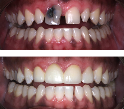 Before-and-after photos of dark, uneven, and broken teeth transformed by a smile makeover from Baton Rouge cosmetic dentist Dr. Steven Brooksher.