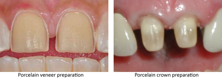 Side-by-side photos of upper front teeth with porcelain veneer preparation and porcelain crown preparation